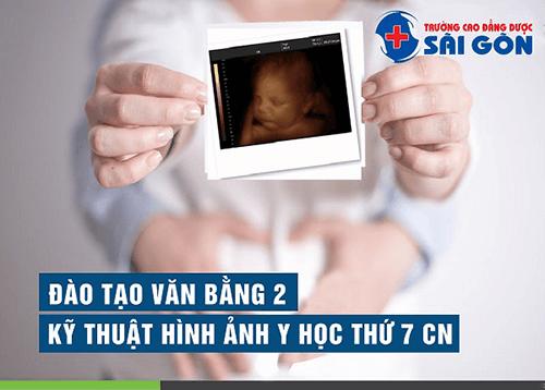 Tuyển sinh Văn bằng 2 Kỹ thuật Hình ảnh Sài Gòn năm 2019